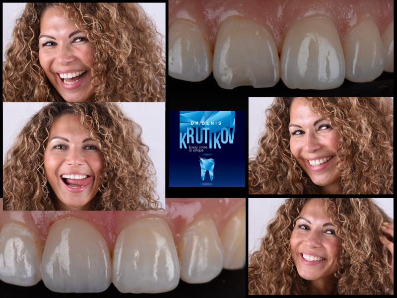 Прямая реставрация зуба