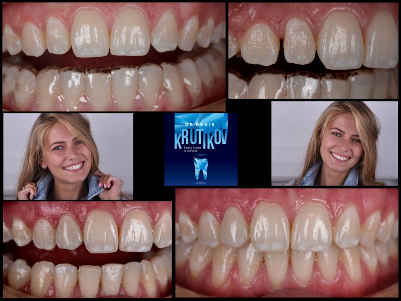Прямая композитная реставрация без препарирования зуба
